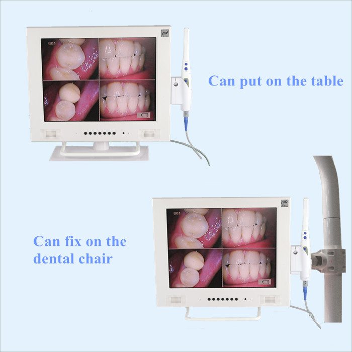 Suction Tip Types Camera Dental Suction Tip