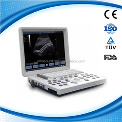Cheapest portable ultrasound machine with doppler color MSLPU33Q