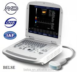Color Doppler High Intensity Focused Ultrasound (Factory Price)
