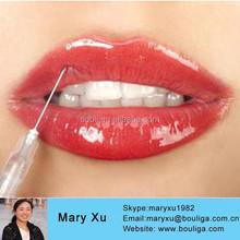 Cross-linked Hyaluronic acid gel; HA filler;injectable sodium hyaluronate; injection; anti-wrinkle
