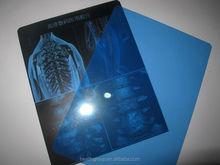 X-ray film illuminator medical film