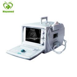 MY-A001-1 Cheap Portable Bladder Scanner Full Digital Portablt Ultrasound Scanner