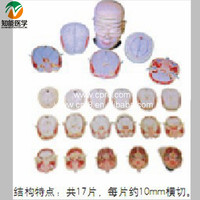 The human head and neck anatomy of a transverse fault model BIX-A1072