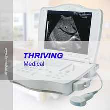 THR-LT002 Full Digital Laptop Ultrasound Scanner