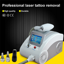 tattoo removal blog/tattoo laser removal san diego/laser tattoo removal pricing