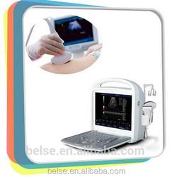 color doppler echo machine & hot sale protable ultrasound scanner