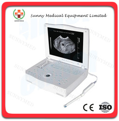 SY-A004 Medical Equipment Cheap PC Based Portable Laptop 15'' LCD B Ultrasound Scanner