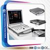 ob/gyn portable ultrasound machine&doppler color ultrasound machine DW-C60