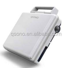 Q6 15 inch laptop portable ultrasound machine with doppler