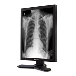 2MP diagnostic monochrome lcd monitor ideal for viewing CR, DR, MRI and CT images to use as a PACS/HIS/RIS, CE approval