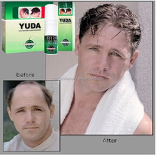 Top selling herbal ginseng hair growth spray YUDA brand or private label hair care product