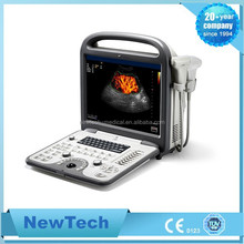 Hospital and clinic used pc ultrasound scanner from NewTech