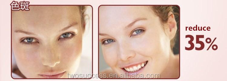 eye wrinkle remover machine (2).jpg