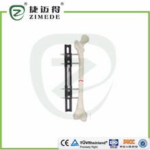Hueso alargamiento externa fixator tipo B ortopédica externa fijación