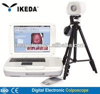 Colposcope Camera/full hd colposcopy for cervix examination