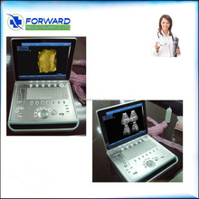 Doppler Ultrasound for Vascular Application