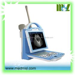MSPU27K laptop B ultrasound machine sale/cheap laptop B ultrasound/laptop B ultrasound for sale