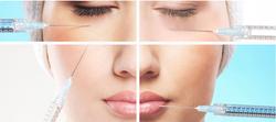 Great grade face dermal filler hyaluronic acid for beauty injections