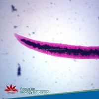 The Educational Contrast of Cattle Ureter and Human Ureter Microscope prepared slides