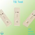 prueba de la tuberculosis