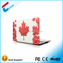 New Top Grade Fashionable Image cover case for macbook notebook ,shell cover for macbook notebook pro, case for macbook notebook