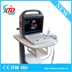 Portable 2D Ultrasound Machine With Color Doppler For Pregnancy