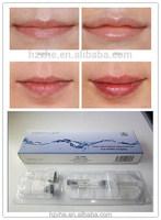 OEM factory Hyaluronic Acid HA dermal filler /lip filler/lip augmentation