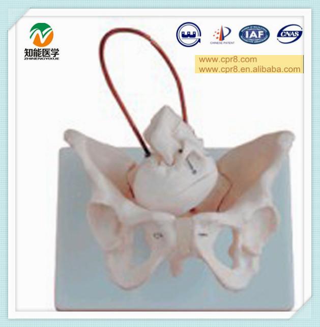 5 Bones of The Fetal Skull Fetal Skull Midwifery Bone