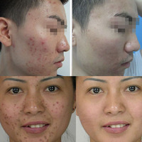 800 Meshes herbal powder masks for removing acne scar pimple spot scar removal powder OEM