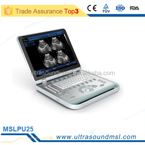 portable vascular ultrasound machine