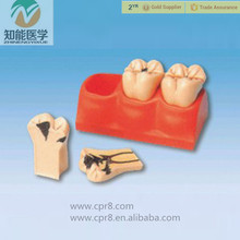 Medical Caries decomposition and anatomical model