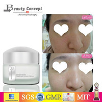 face whitening cream and dark spot removal