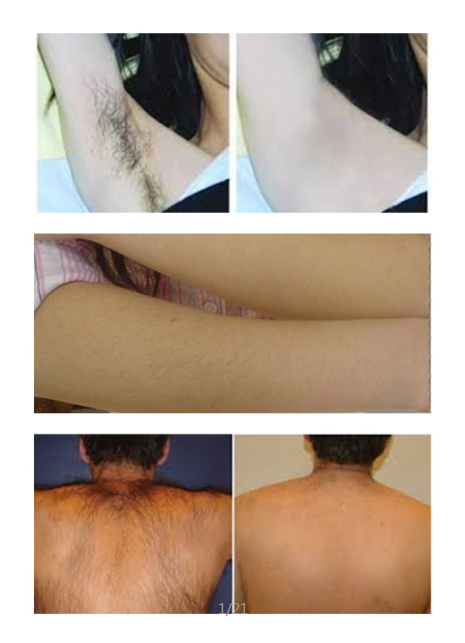 Лазерное удаление волос диодным лазером