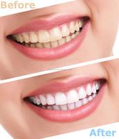Teeth Whitening strips zoom teeth bleaching machine