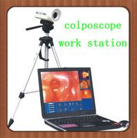 ATNL3161 Digital Laptop Colposcope/gynecology tools/portable colposcope