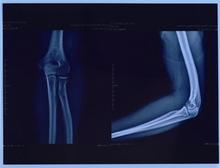 china cheap Medical LED X-Ray Film Illuminator with single film