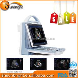 Ultrasonic Diagnostic Devices Type Color Doppler Ultrasound machine