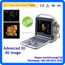 MSLCU28Z High-quality medical equipment 3D 4D color doppler ultrasound machine