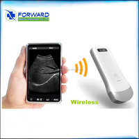 Portable Ultrasonic Diagnostic Devices Type Wireless Ultrasound Probe