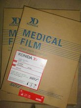 One film ---- X ray film viewer / medical supply