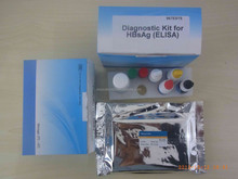 Pathological Analysis Equipments blood group reagent hepatitis e virus elisa test kits
