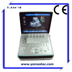 3D Color Doppler Ultrasound Scan Machine with China Wholesale Price