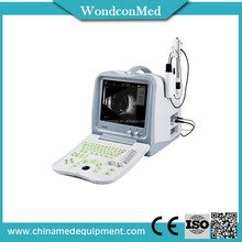 WME1100A Cheapest Handheld dental 3d scanner software