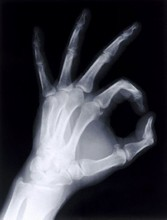 Konida medical hot sex x-ray film /thermal film / blue film for LED film viewer