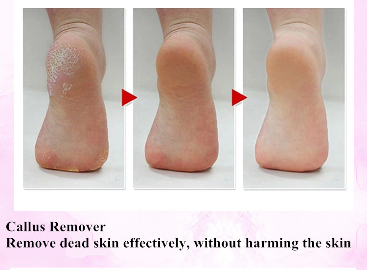 Jinding Electric Foot Callus Remover Manufactory Buy
