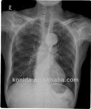 Agfa dry film, medical x-ray film x-ray radiation protection