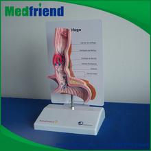 MFM017 China Wholesale Human Stomach
